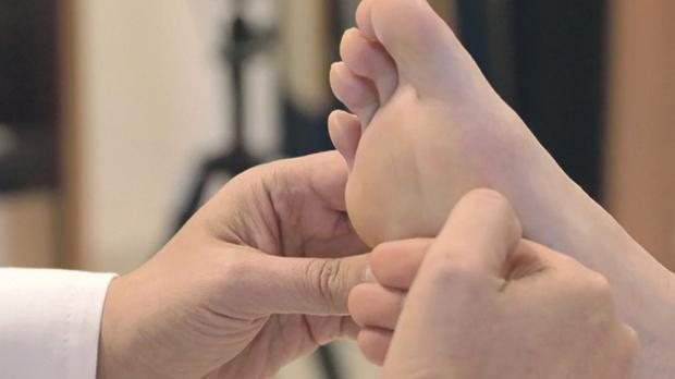 Preventing foot complications in diabetes